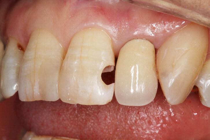 前歯部 コンポジットレジン修復 治療例 その3