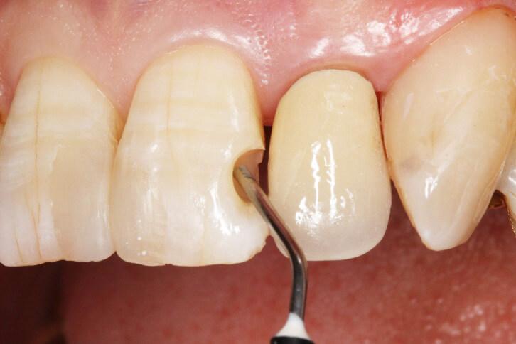 前歯部 コンポジットレジン修復 治療例 その8