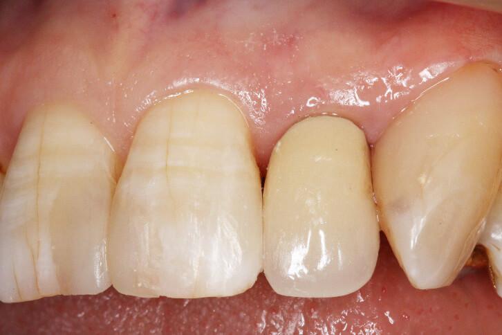 前歯部 コンポジットレジン修復 治療例 その9