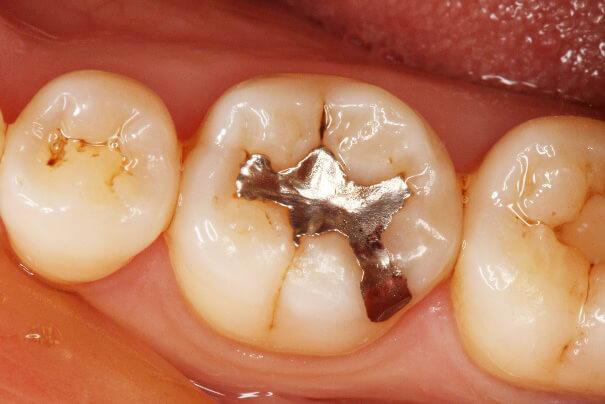 臼歯部 コンポジットレジン修復 治療例 その1