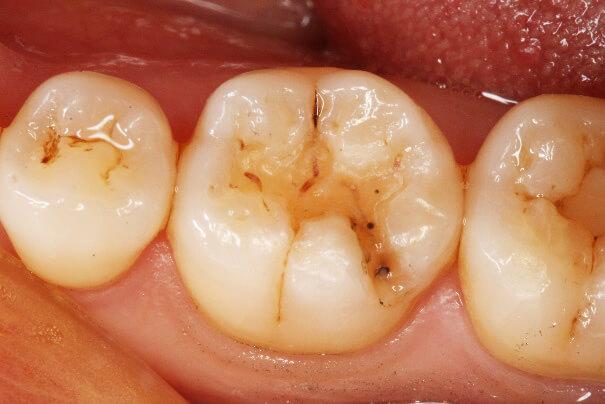 臼歯部 コンポジットレジン修復 治療例 その2