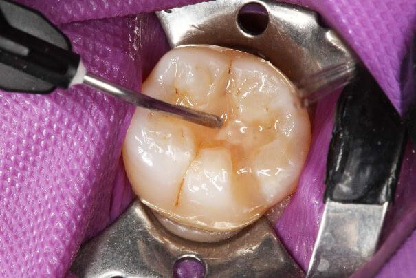 臼歯部 コンポジットレジン修復 治療例 その7