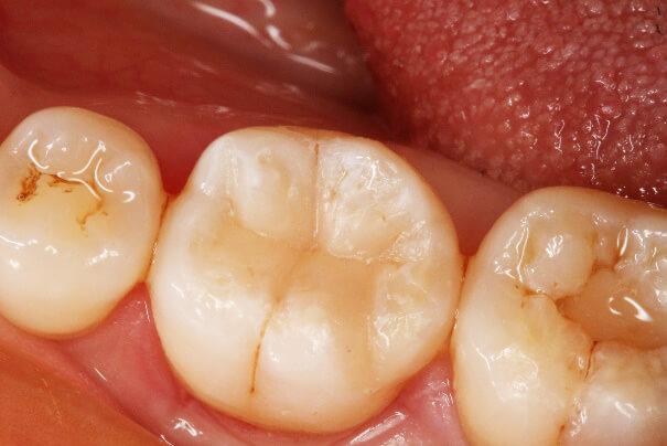 臼歯部 コンポジットレジン修復 治療例 その9