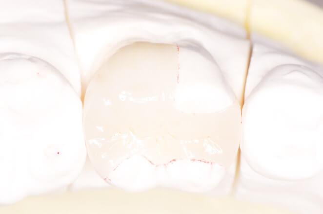 セラミックアンレー修復(e.max) 治療例 その5