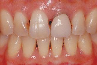 ホワイトニング+ダイレクトボンディング+オールセラミッククラウン例1 治療前