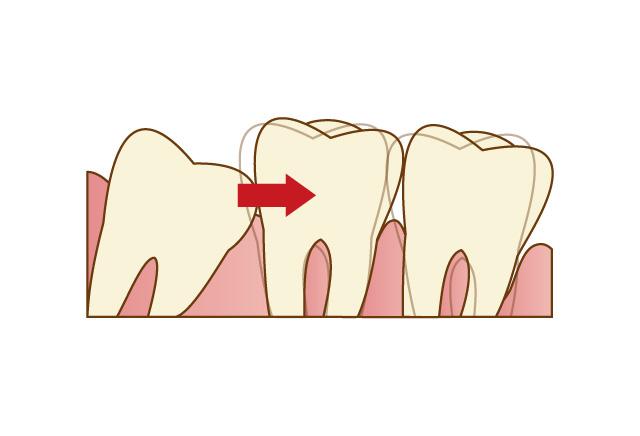 隣の歯に負担をかける
