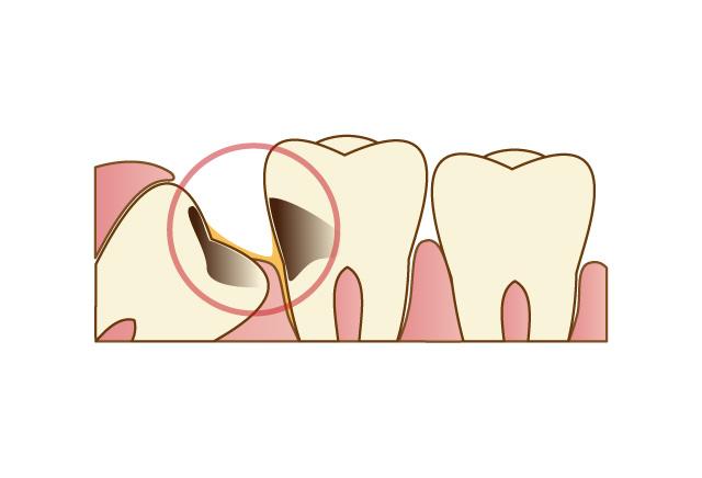 隣の歯に悪影響を与える
