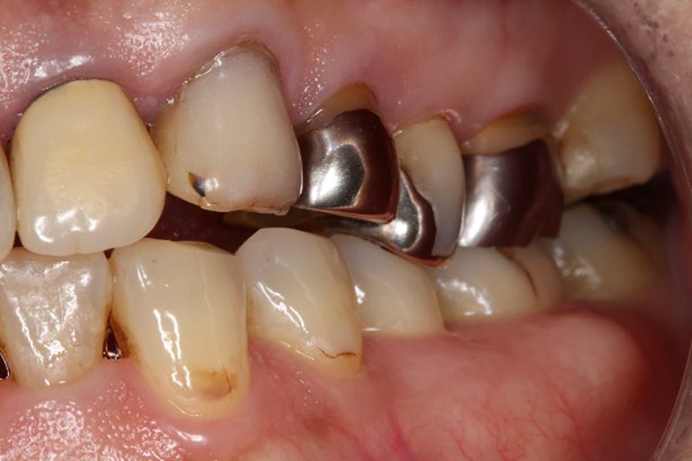 歯ぎしりのある方の口腔内の一例
