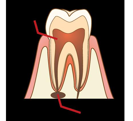 根幹治療 汚染された歯髄と根の先にたまった膿