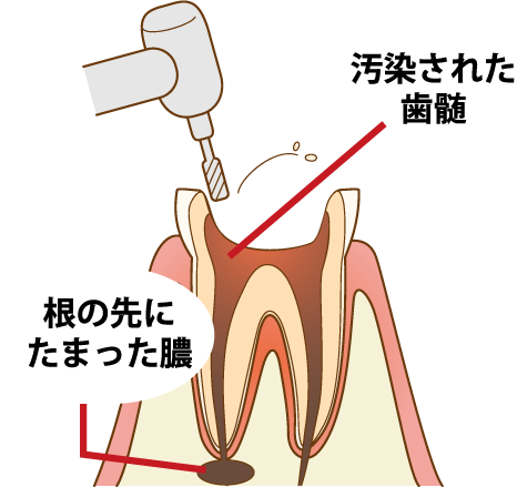 根幹治療 歯を削り、汚染された歯髄と膿を除去できるようにする