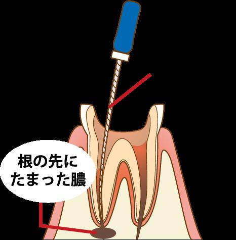 根幹治療 汚染された歯髄と膿の除去