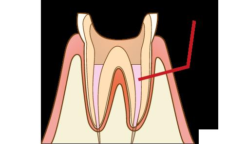 根幹治療 歯に消毒薬を注入