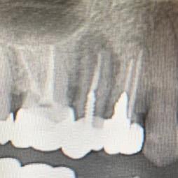 歯の破損 レントゲン写真