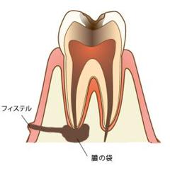 川本歯科医院のフィステル(瘻孔)についての説明イラスト