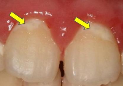 乳歯の特徴 初期虫歯(白斑)