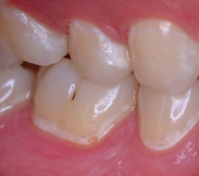 乳歯の特徴 酸に弱く穴が開きやすい