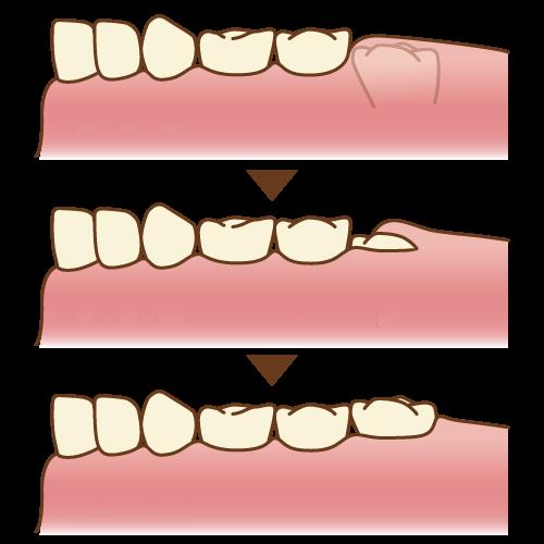 生えてきたばかりの6歳臼歯 イメージ図