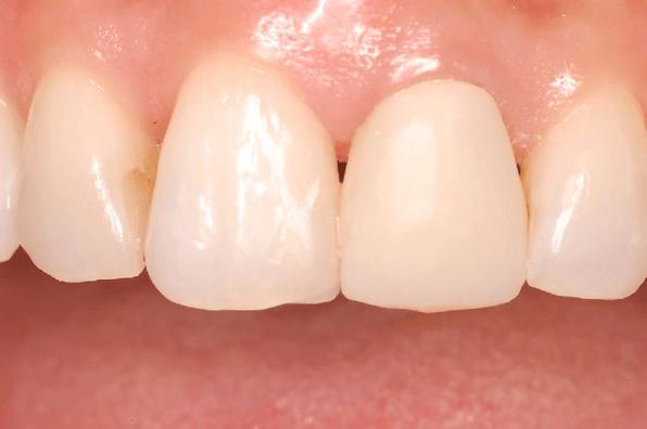 補綴物治療の流れ テンポラリークラウン(仮歯)の作成