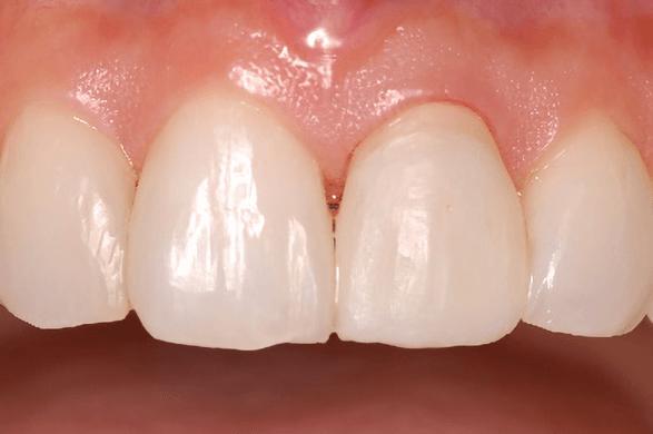 補綴物治療の流れ テンポラリークラウン(仮歯)の調整