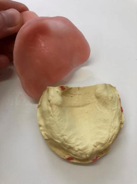 義歯の場合 精密印象採得(型取り)