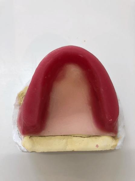 義歯 咬合採得